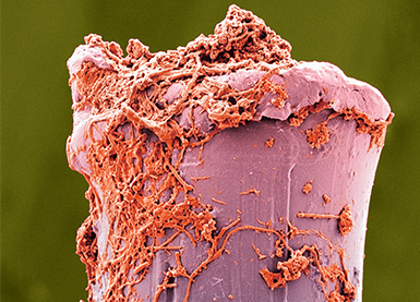 Magnified toothbrush bristle